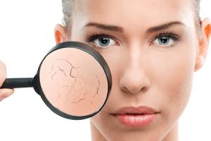 Da khô – Nguyên nhân và giải pháp giúp da khô luôn căng mịn