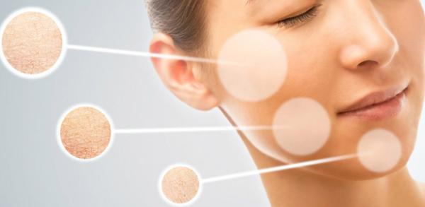 Khi da mặt thiếu ẩm, da bị khô sần và ngứa