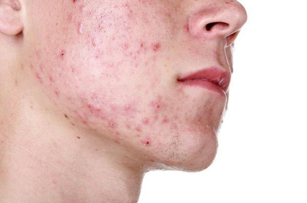 Một trong những dấu hiệu đầu tiên khi da bị stress là mụn