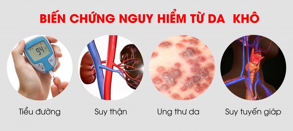 Da khô cót hể là dấu hiệu của các bệnh suy thận, ung thư da, suy tuyến giáp, tiểu đường
