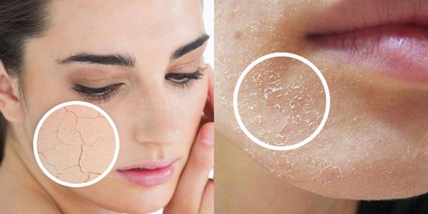 Mùa đông bạn nên tẩy da chết 1 - 2 lần/tuần
