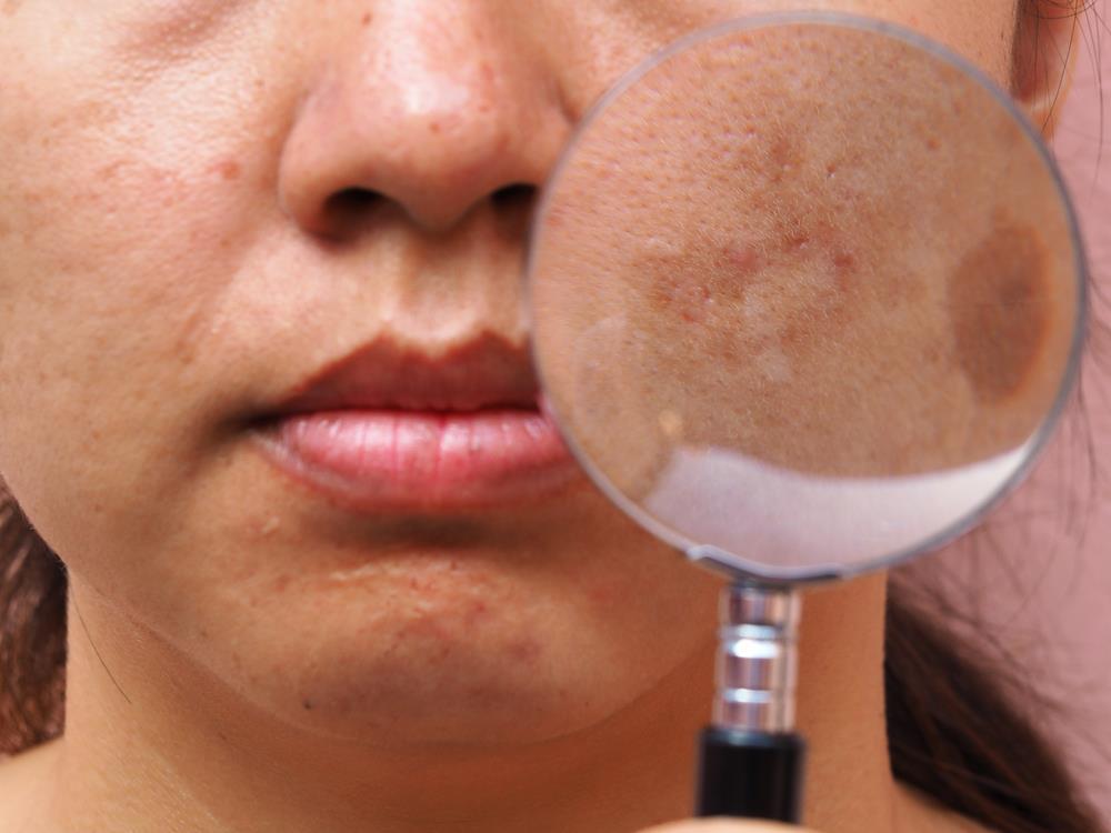 Ngoài 30 tuổi, phụ nữ Việt Nam đều bị nám da do không dùng kem chống nắng