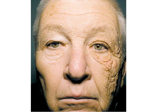 Sự khác biệt rõ rệt trên hai nửa khuân mặt của ông Bill dưới tác hại của ánh nắng (Nguồn: Báo Người Lao động)