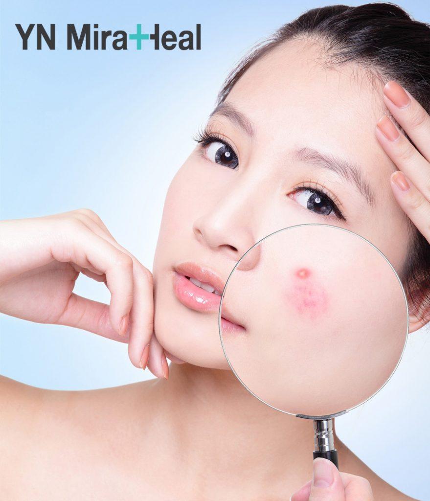 Da dầu thường dễ bị mụn do lỗ chân lông bị bã nhờn bít tắc