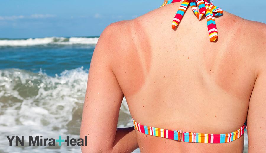 Thành phần của nước biển khiến da bắt nắng và dễ sạm đen hơn