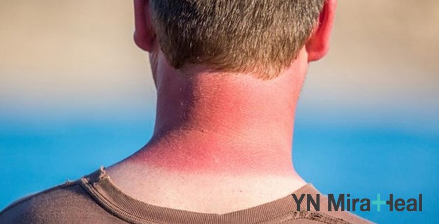 Do chủa quan, nam giới thường bị cháy nắng vào mùa hè