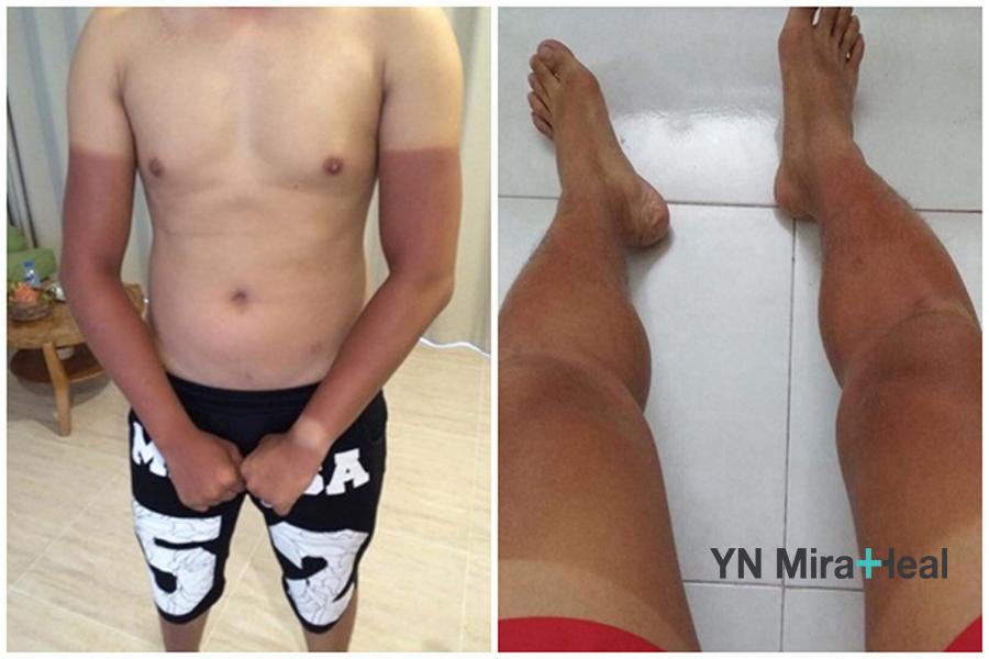 Chủ quan không sử dụng kem chống nắng, nam giới thường bị cháy nắng, bỏng rát da vào mùa hè