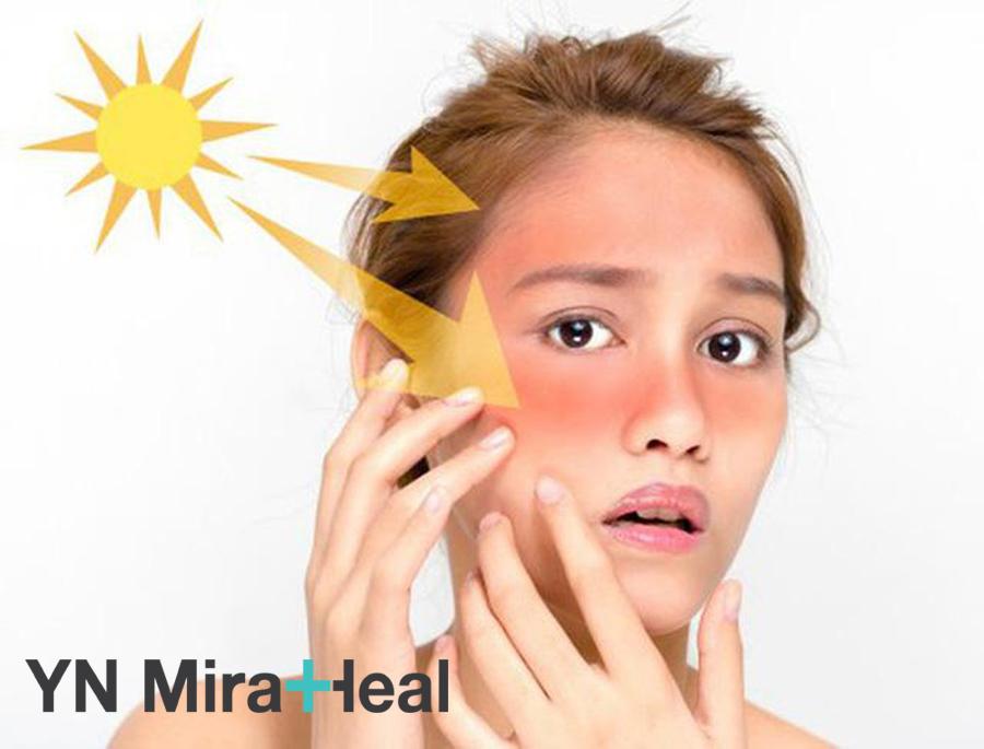 Không sử dụng kem chống nắng hằng ngày, da khô có nguy cơ ung thư da cao gấp nhiều lần da thường