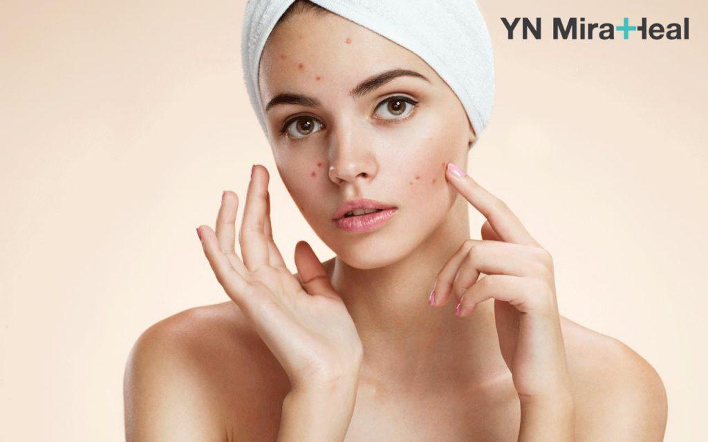 Da nhạy cảm dễ bị tổn thương hơn gấp nhiều lần da thường