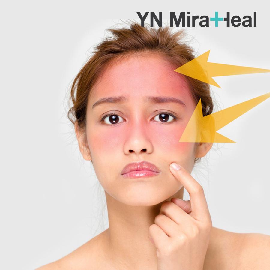 Kem chống nắng là sản phẩm cần thiết để bảo vệ làn da khỏi tia cực tím