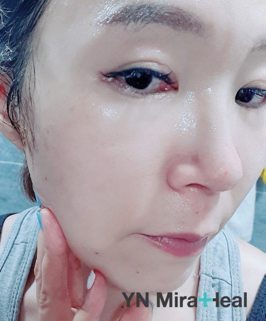 Làn da sau khi rửa mặt rất ẩm, mịn