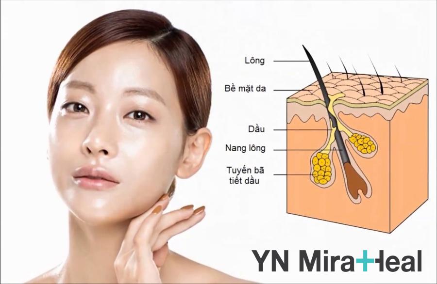 Da hỗn hợp thường bị bóng dầu vùng chữ T nhưng vùng da xung quanh lại bị khô