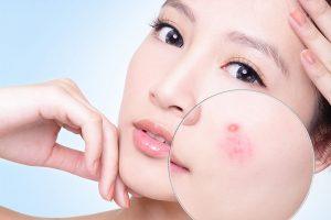 Da mụn có nên dùng kem dưỡng ẩm không?